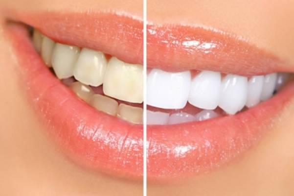 POTREBNA 2 SASTOJKA: Izbijelite prirodno zube za samo jednu minutu…