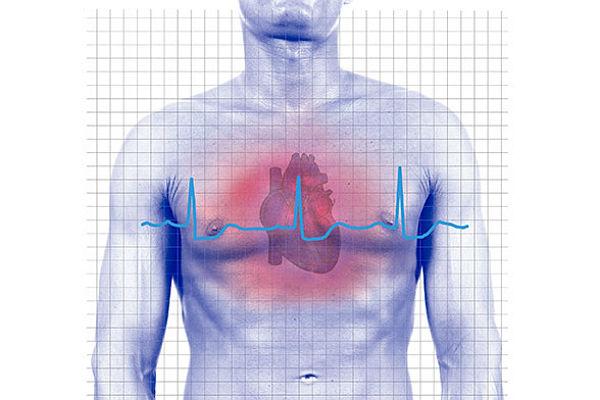 Ovo su simptomi infarkta kod mladih ljudi, i ako se jedan podatak odnosi na vas – PAZITE SE!