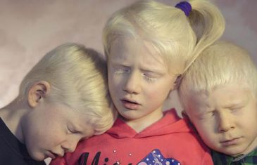 PROBLEMI ALBINO POPULACIJE: NAJVIŠE NAS BOLE ZNATIŽELJNI POGLEDI NA ULICI