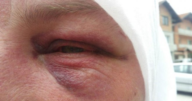 Potresna ispovijest pokrivene žene koja je napadnuta u Kiseljaku: Vlasnik kafića je čuo 'Allahimanet' i onda…