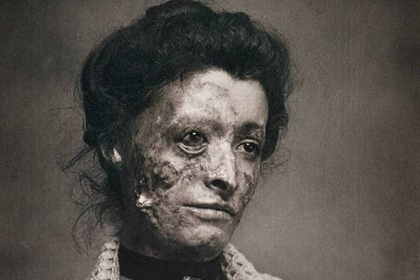APSOLUTNO UŽASNE FOTOGRAFIJE: Jeziva strana nekadašnje medicine koje ne možete da ne primetite!