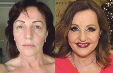 EKSKLUZIVNO: Ovako je Ana Bekuta izgledala prije estetskih operacija!