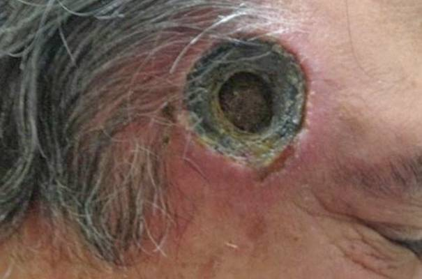 FOTOGRAFIJA NIJE ZA OSJETLJIVE OSOBE: I doktori su bili u šoku, čovjek došao u bolnicu s rupom od 2,5 cm u…
