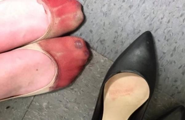 Ova fotografija konobarice sa krvavim nogama zgrozila internet