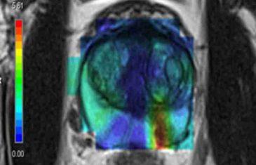 NAUČNICI OKONČALI NAGAĐANJA: Saznajte šta stvarno izaziva rak!