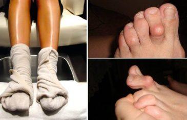Liječenje reumatoidnog artritisa: odlično domaće sredstvo.
