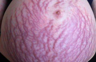 Trudnica pretrpjela pakao: Otkrila da je alergična na bebu koju nosi u stomaku.