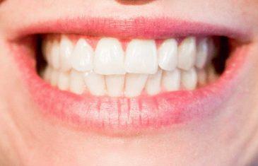 Četiri koraka do savršeno bijelih zuba bez kamenca