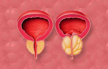 ZAPANJUJUĆI NAUČNI DOKAZI: Rak prostate ne treba operisati i zračiti EVO ZBOG ČEGA…