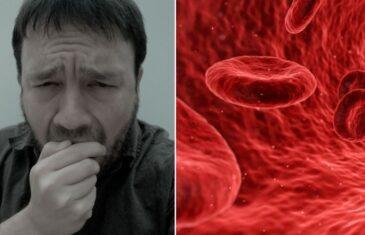 Znate li kako prepoznati KRVNE UGRUŠKE? Ove simptome shvatite JAKO OZBILJNO !